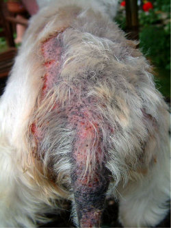 Severe Atopic Dermatitis with secondary infection